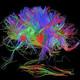 Mindset - reprograma tu cerebro, ya es tiempo