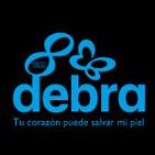 Programa 30 - Tienda Solidaria Piel de Mariposa Debra