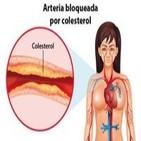 Diabetes en Radio 055 – El Colesterol y la diabetes