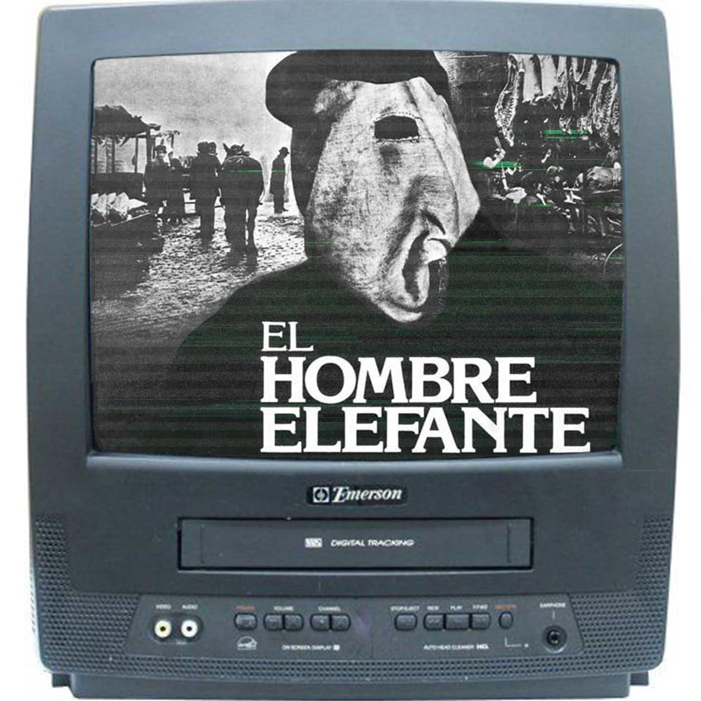 03x06 Remake a los 80 'El Hombre Elefante' 1981 -David Lynch