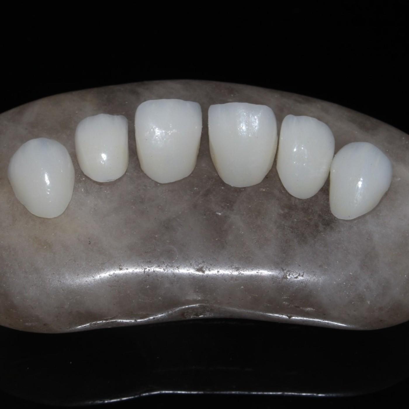 Relato Rehabilitación Oral