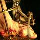 Pie de Charcot II. Tratamientos quirúrgicos.