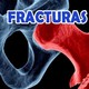 Nutribella - FRACTURAS